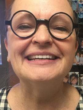 A patient's perfect smile is shown off after having work performed on her formerly missing upper front teeth.