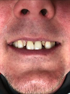 Before having crowns implanted, a crowded smile is shown off where the neighbors to the two front teeth will be capped.