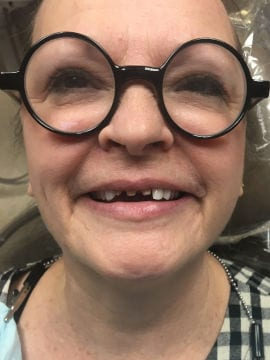 A patient has what appears to be three upper front teeth almost completely missing.